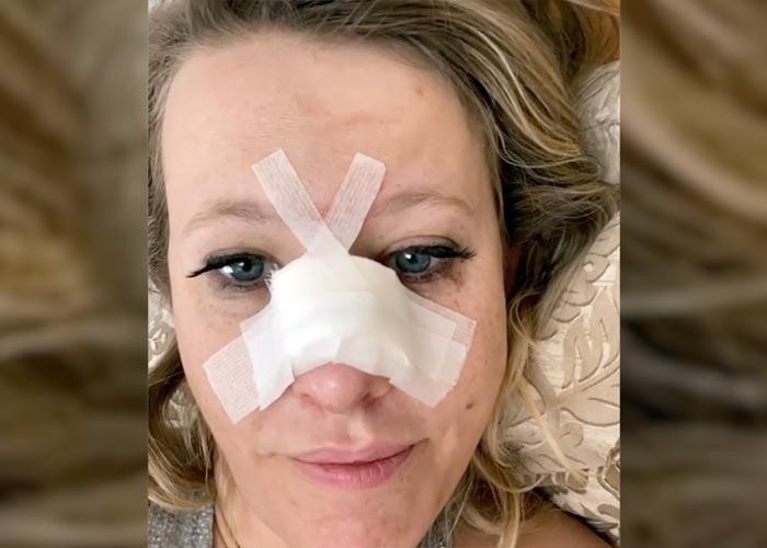 Ксения Собчак перелом носа