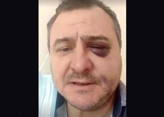 избитый Руслан Казанцев