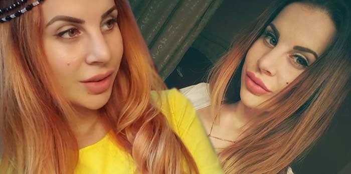Ольга Ветер увеличение губ