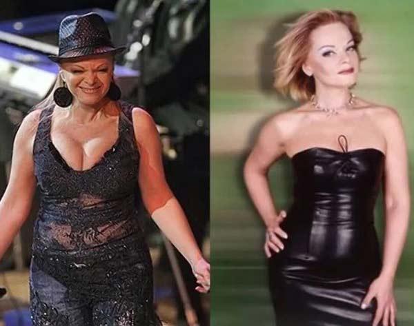 Лариса Долина до и после похудения