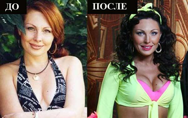 Наталья Бочкарева до и после пластики