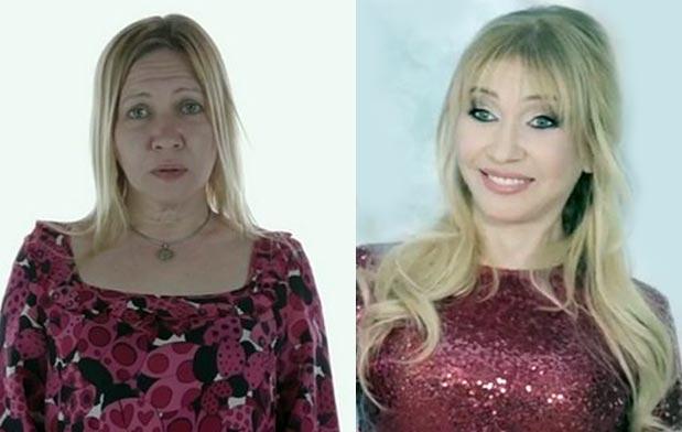 Татьяна Иванова до и после пластики