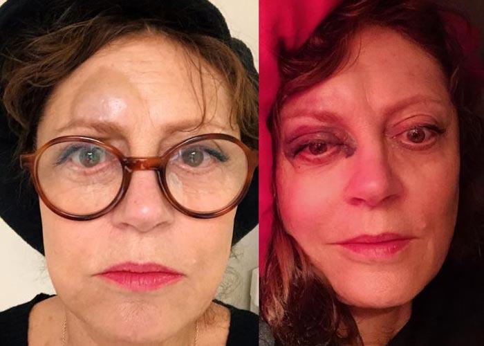 73-летняя Сьюзан Сарандон травмы
